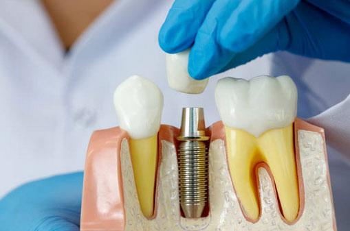 Dental Implant Restorations in Fort Washington PA