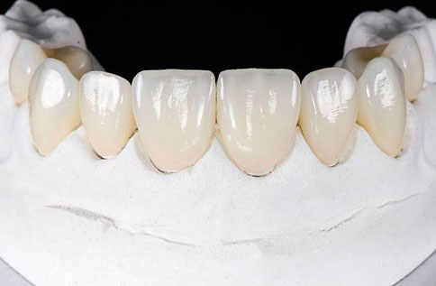 Direct Resin Veneers in Fort Washington, PA - JLEE Dental